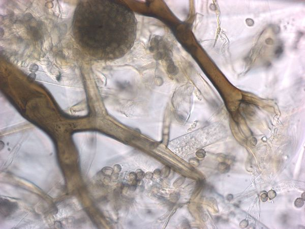 Rhizopus spores and sporangium