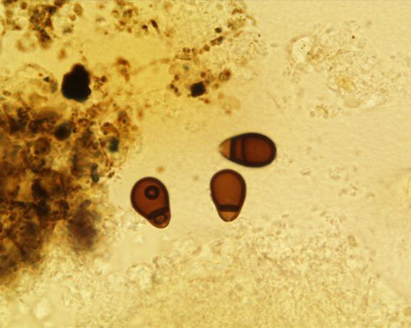 Microscopic photo of Trichocladium conidia showing prominent pore and septation